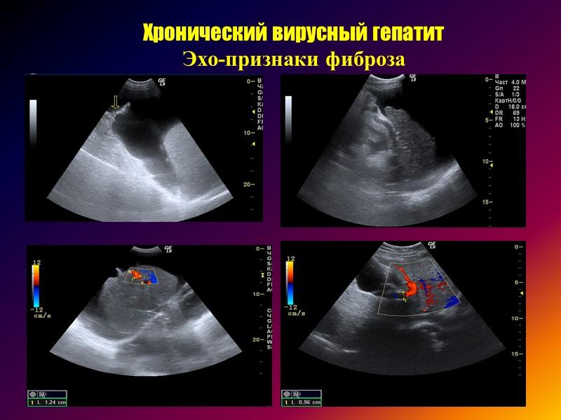 Диффузные заболевания печени диагностика